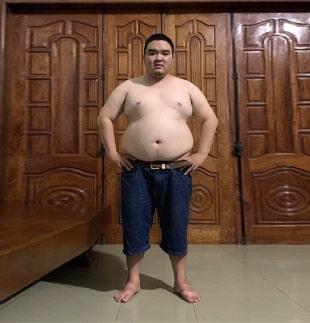 Trước 3 - LMS giảm béo chuẩn y khoa