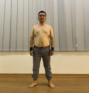Sau 3 - LMS giảm béo chuẩn y khoa